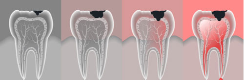 root-canal-illustration